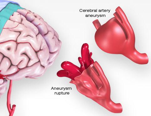 imagen médica de un aneurisma