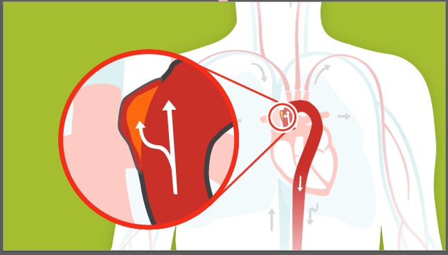 imagen de un aneurisma aórtico