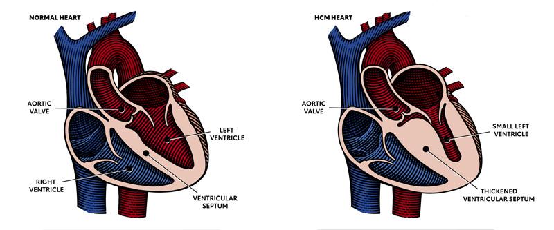Diagrama en el que se muestra un corazón normal y uno con MCH