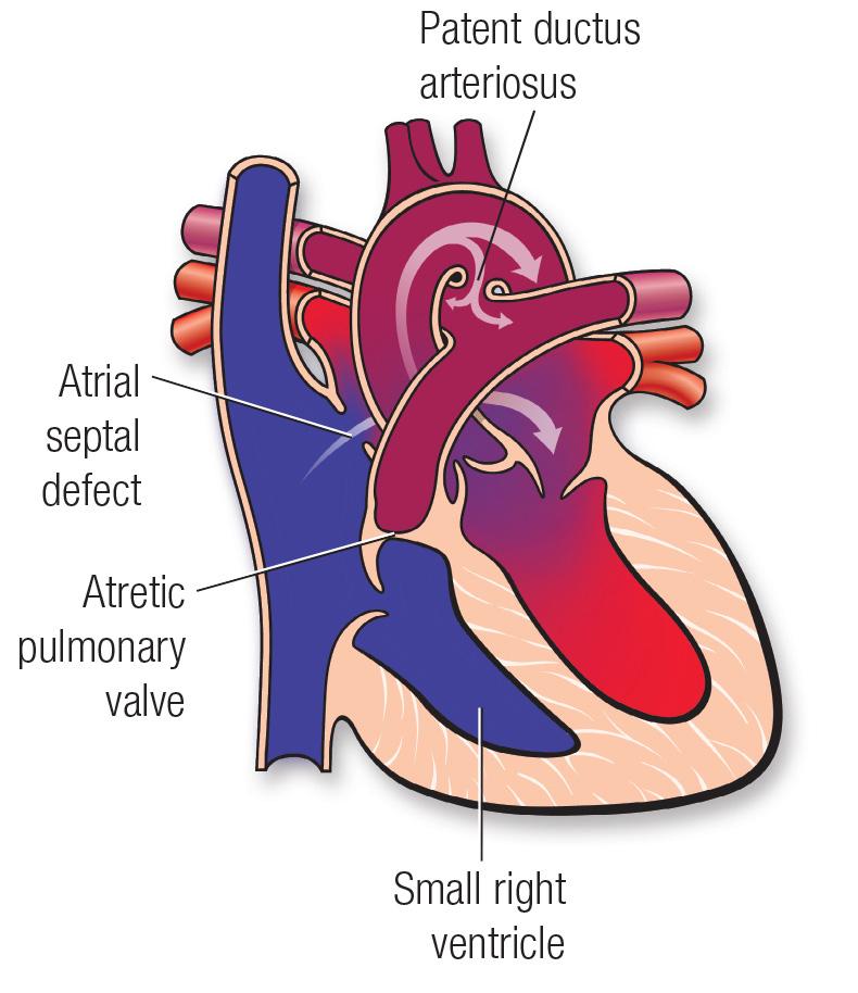 Diagrama de la atresia pulmonar