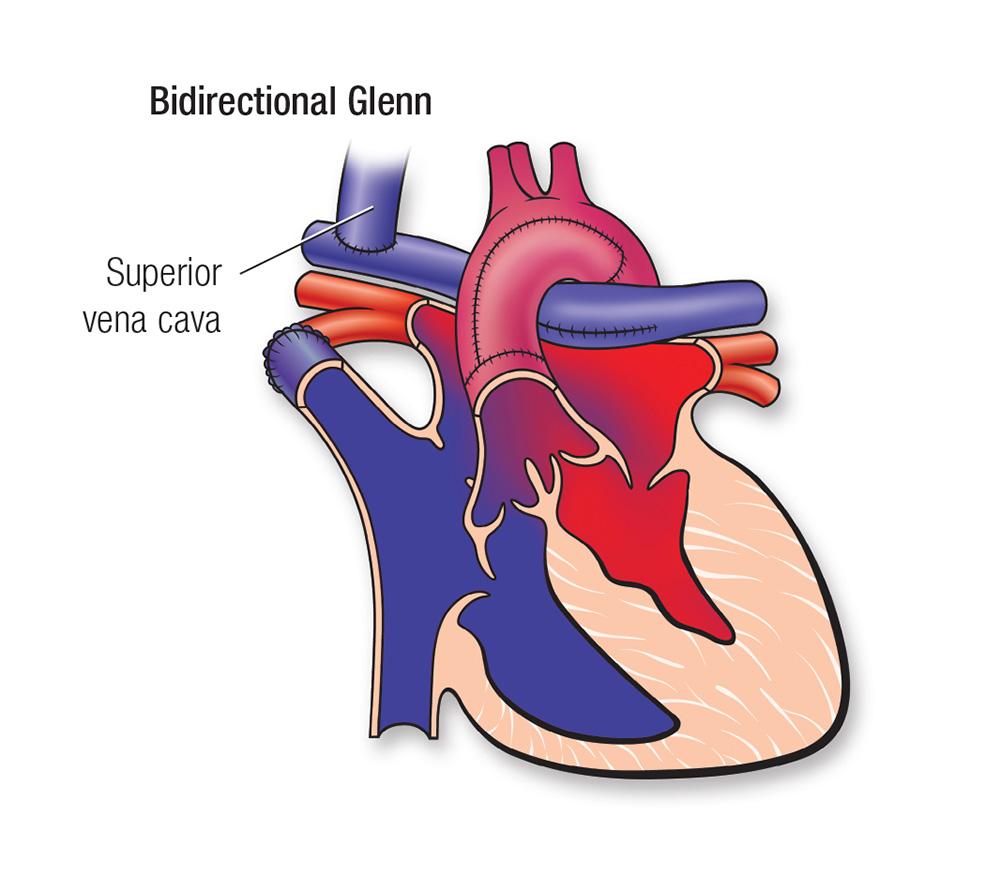Diagrama del Glenn bidireccional