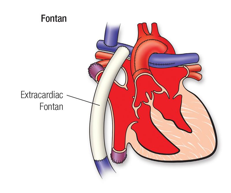 Diagrama de reparación de Fontan