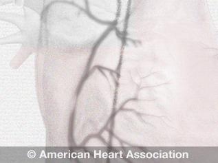 ilustración de angiograma