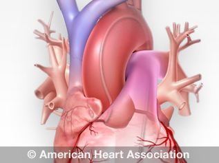 catéter cardíaco
