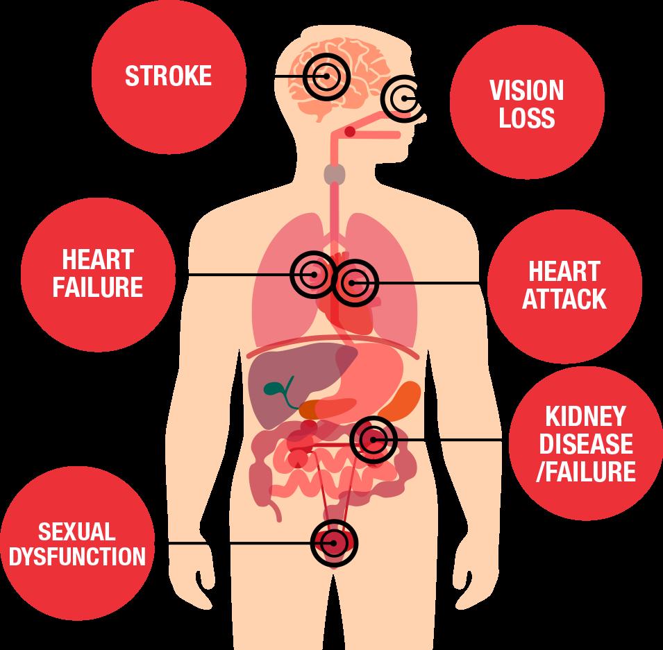 diagrama de amenazas para la salud