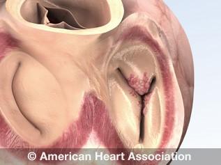 Ilustración de endocarditis