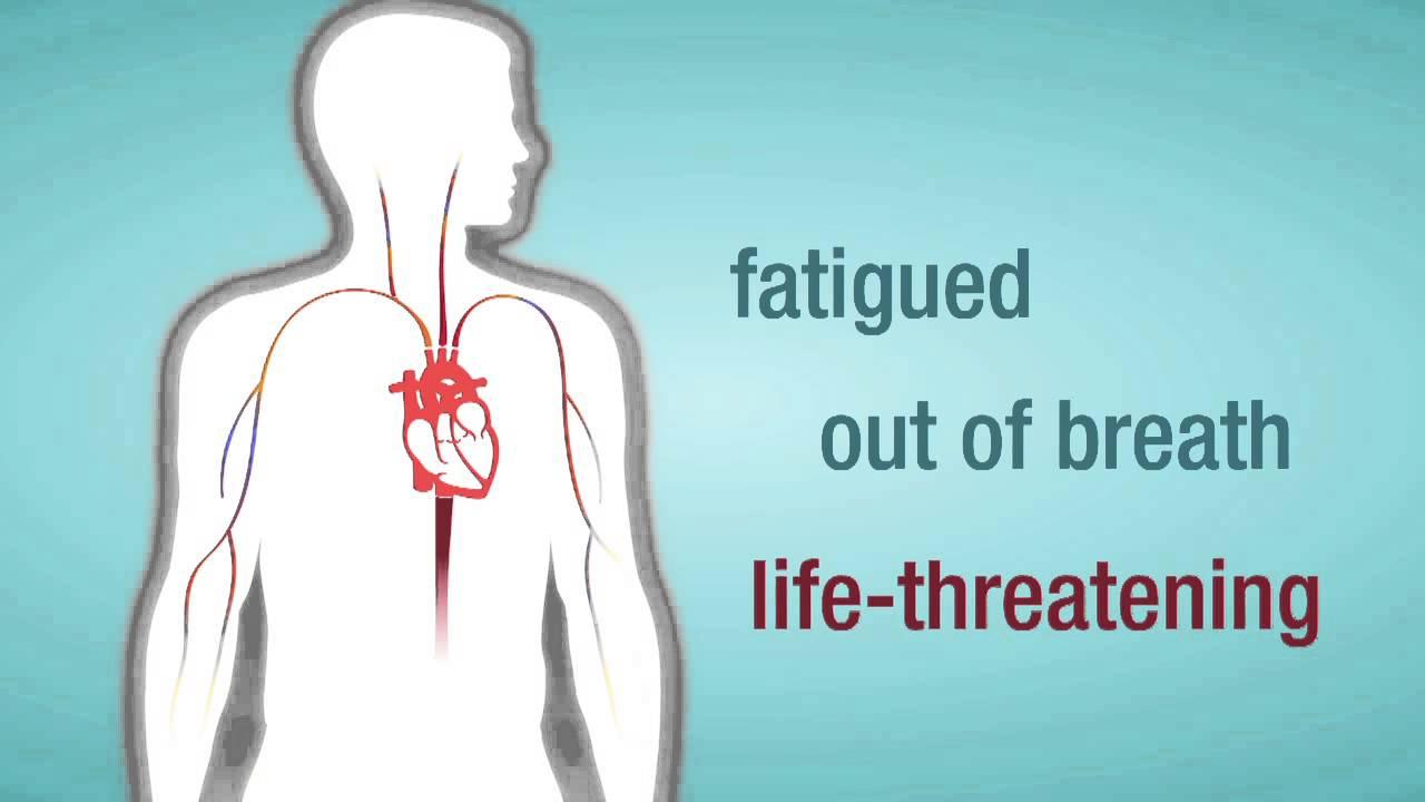 Captura de pantalla del video de insuficiencia de la válvula cardíaca