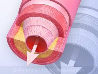 Miniatura del flujo sanguíneo de la biblioteca de animaciones Ver, aprender y vivir sobre la EAP