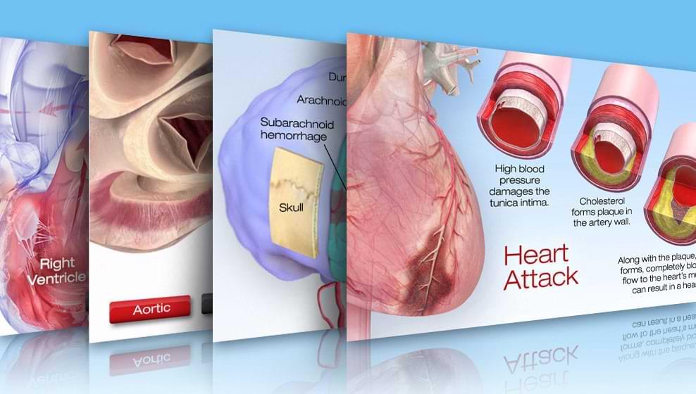 Imagen en miniatura de la biblioteca cardiovascular interactiva