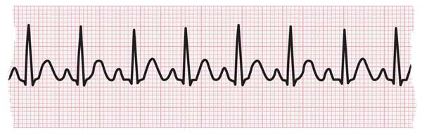 ECG strip showing tachycardia