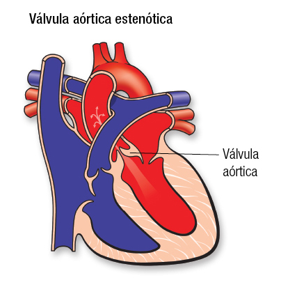 Aortic Stenosis SP