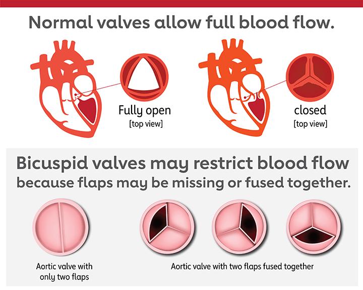 las válvulas bicúspides pueden restringir el flujo sanguíneo