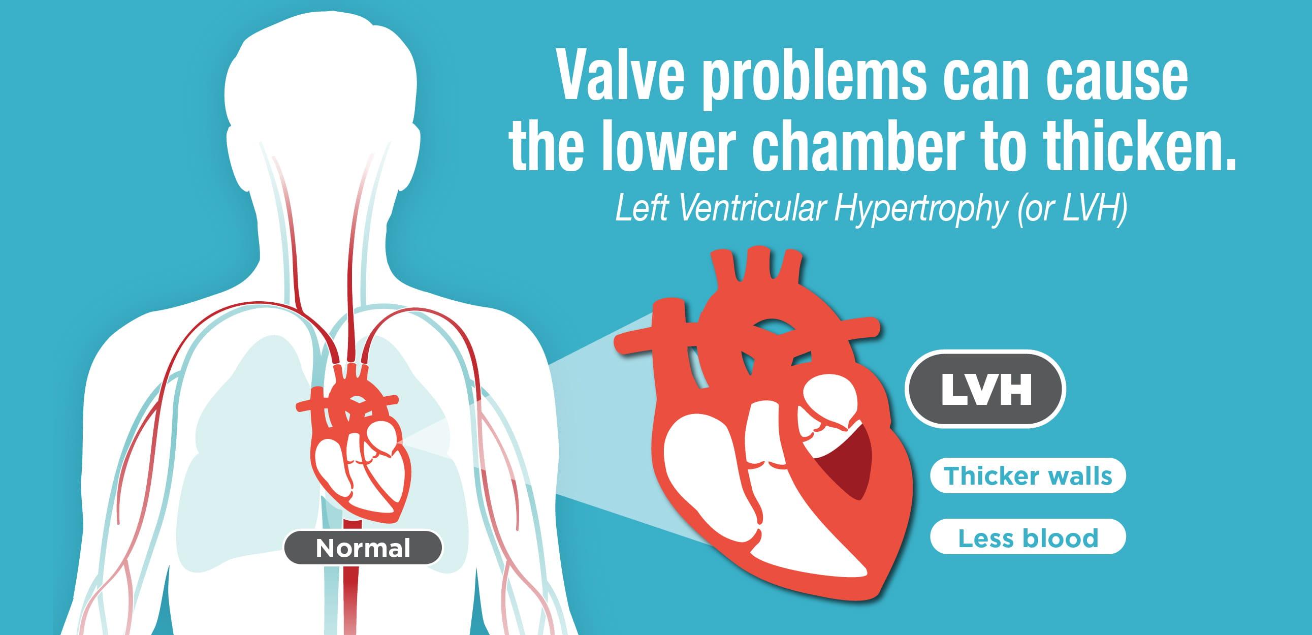 banner de la hipertrofia ventricular izquierda HVI