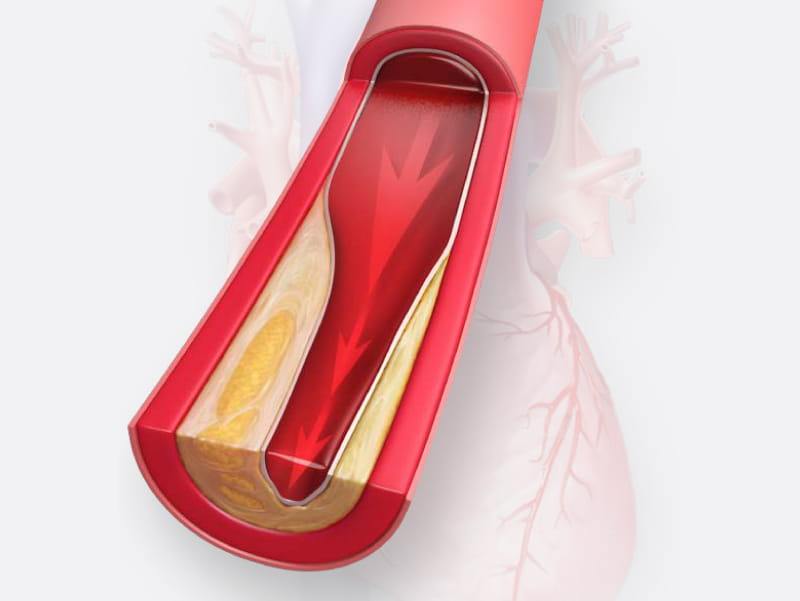 Image of artery narrowed with cholesterol. (Scott Bodell for American Heart Association)